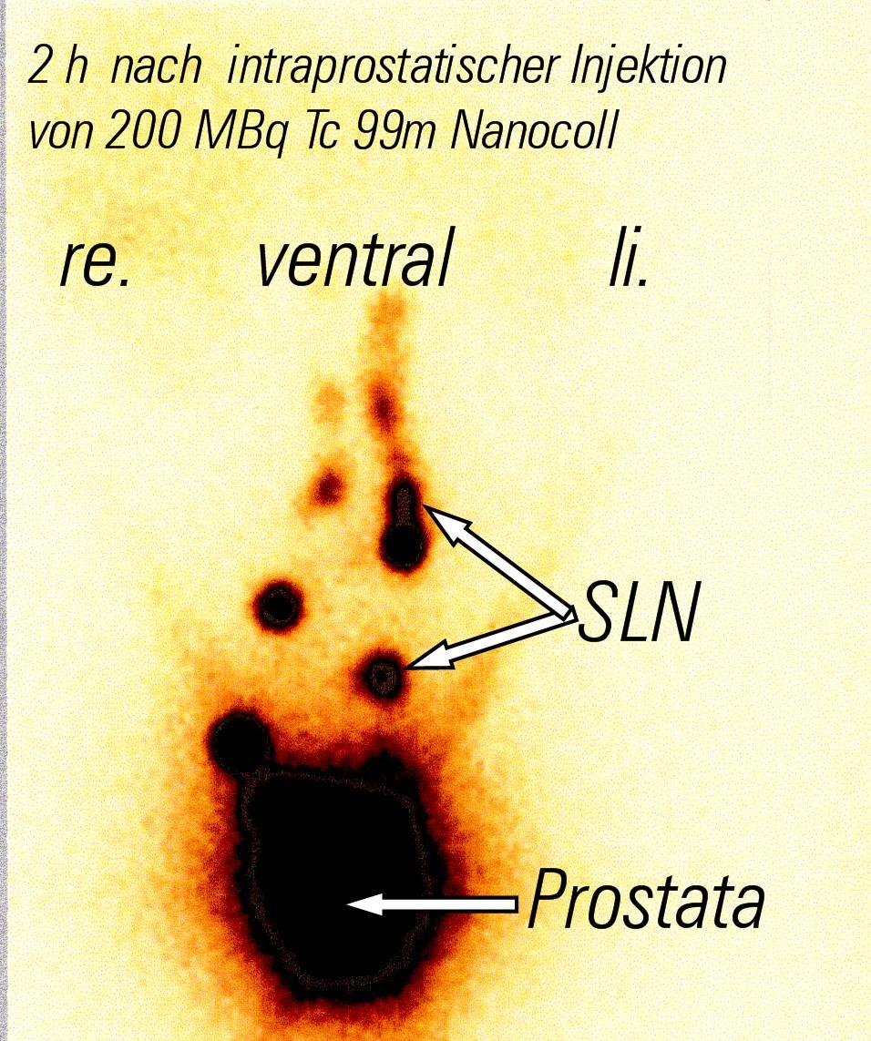 Wächter - Lymphknoten - Prostata (SLN)