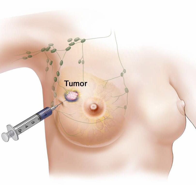Wächter - Lymphknoten - Brustkrebs (SLN)